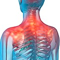Shoulder pain, artwork Print by Science Photo Library