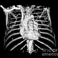3d Ct Reconstruction Of Heart Poster by Medical Body Scans