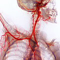 Neck And Shoulder Arteries, X-ray Print by Cnri