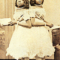 2 Headed Girl Millie-chrissie Poster by Photo Researchers