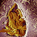 Macrophage Engulfing Tuberculosis Vaccine Print by