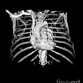 3d Cta Of Heart And Chest Poster by Medical Body Scans