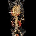 Aortic Aneurysm Ct Scan Poster by Zephyr