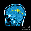 Mri Of Multiple Sclerosis Poster by Medical Body Scans