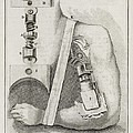 Bone-setting Mechanism, 18th Century Print by Middle Temple Library