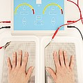 Iontophoresis For Excess Sweating Print by