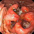 Metastatic Cancer In The Stomach Print by Gastrolab