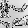 Selection Of 16th Century Artificial Arms & Hands. Print by Dr Jeremy Burgess.