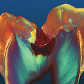 Polarised Lm Of A Molar Tooth Showing Decay Print by Volker Steger